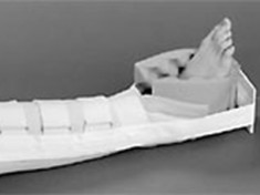 universal-bucks-traction-splint